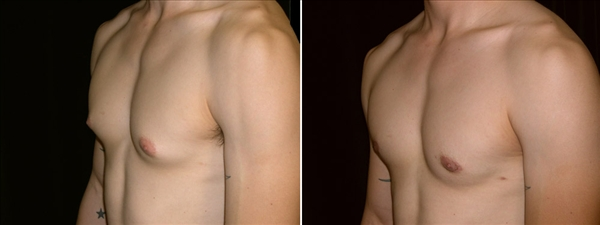 gynecomastia before & after photo