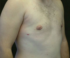 gynecomastia after photo