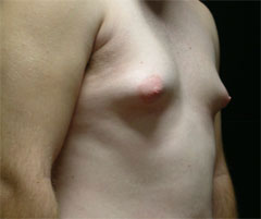 gynecomastia before photo