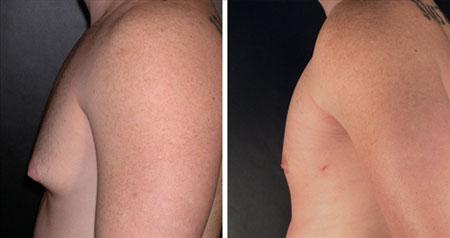 Raloxifene Gynecomastia Before After